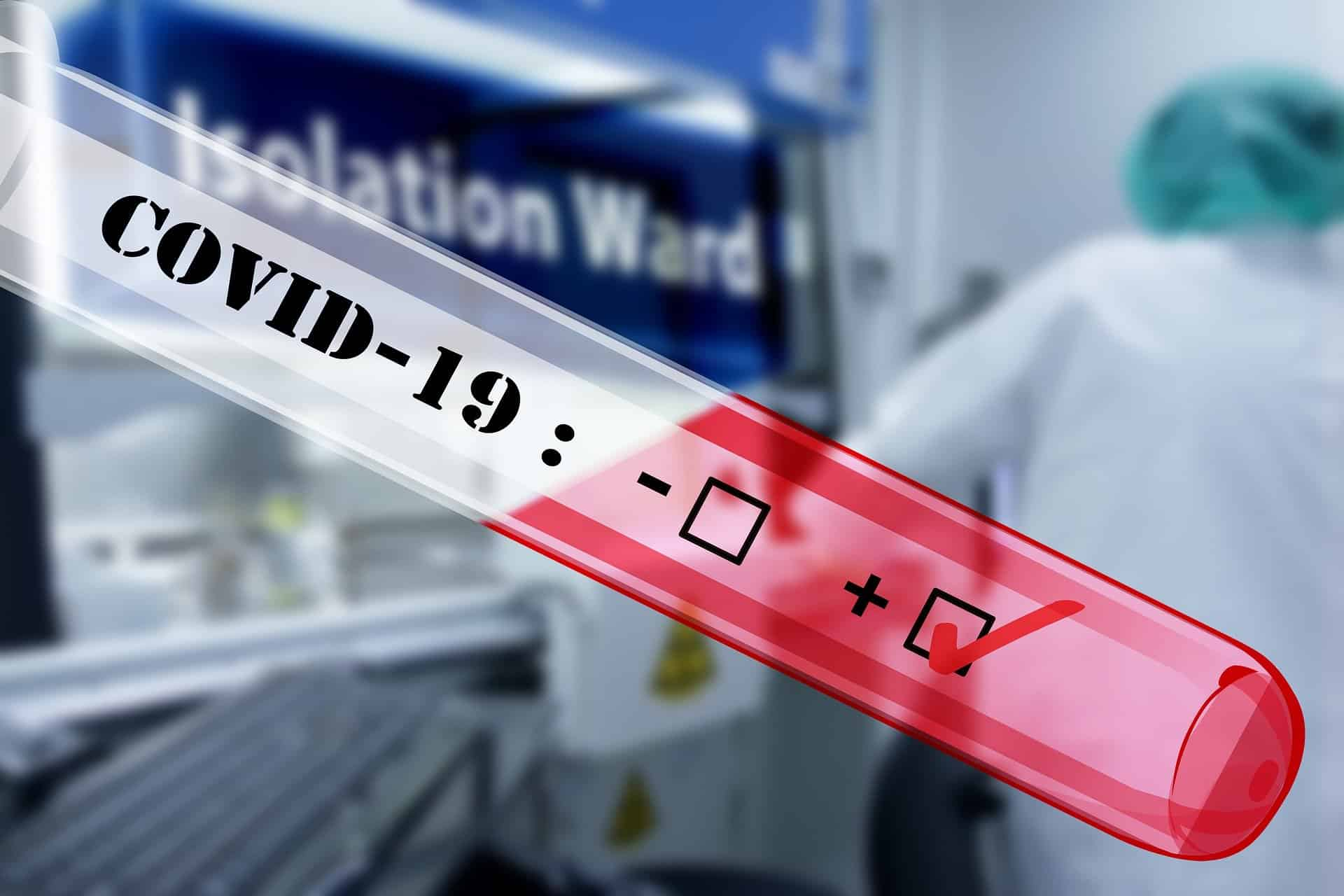 covid-19 virus testing